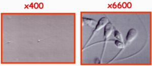 IMSI sélection spermatozoide