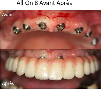 implant dentaire all on 8 avant après