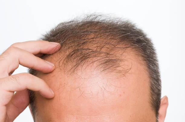 greffe fue cheveux