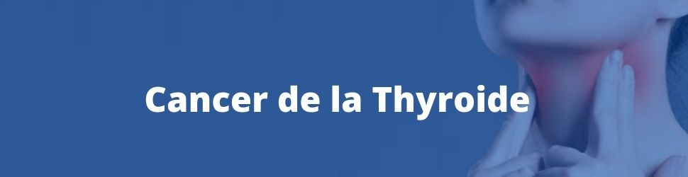 traitement du cancer de la thyroide