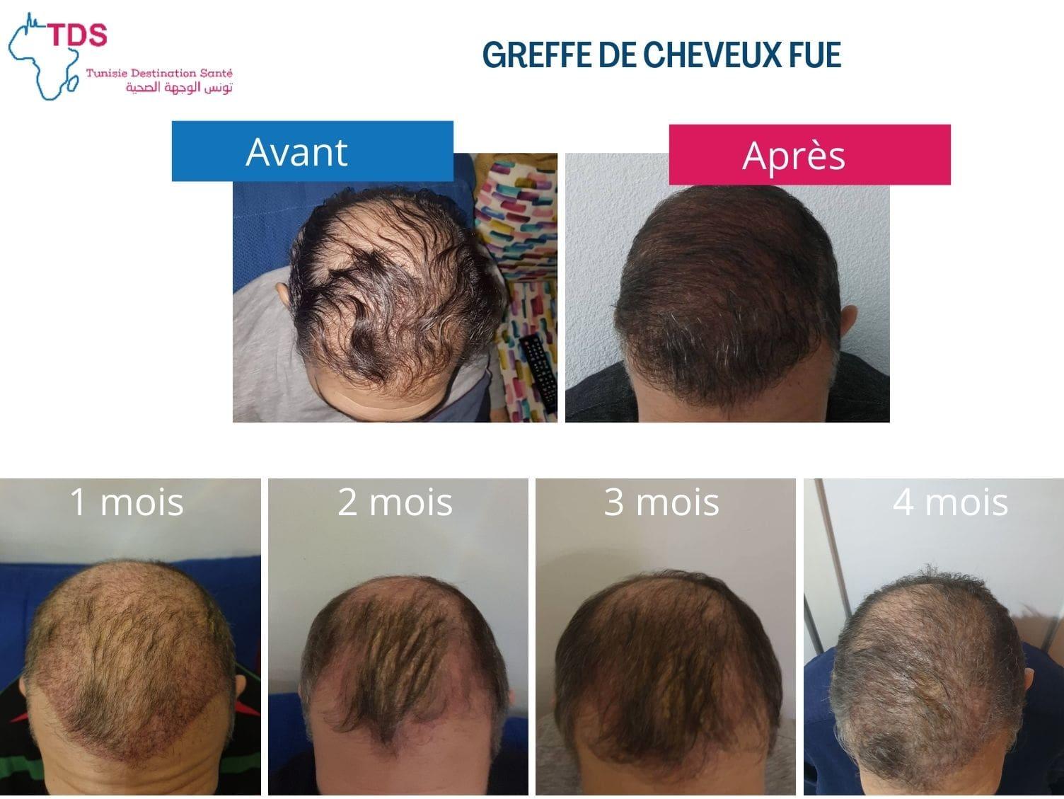 Repousse Des Cheveux Apres Greffe Fue Mois Par Mois Blog Sante