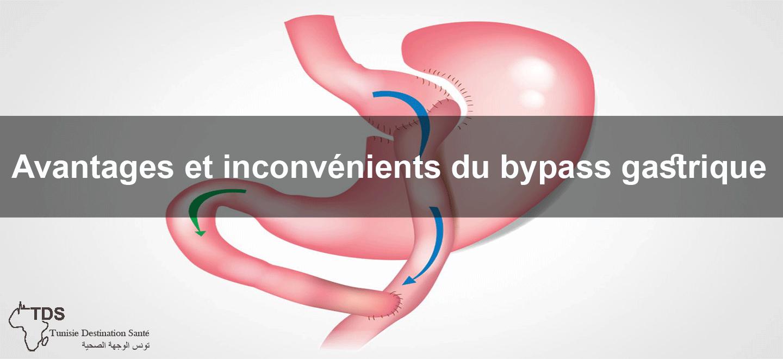 avantages-inconvenient-bypass-gastrique
