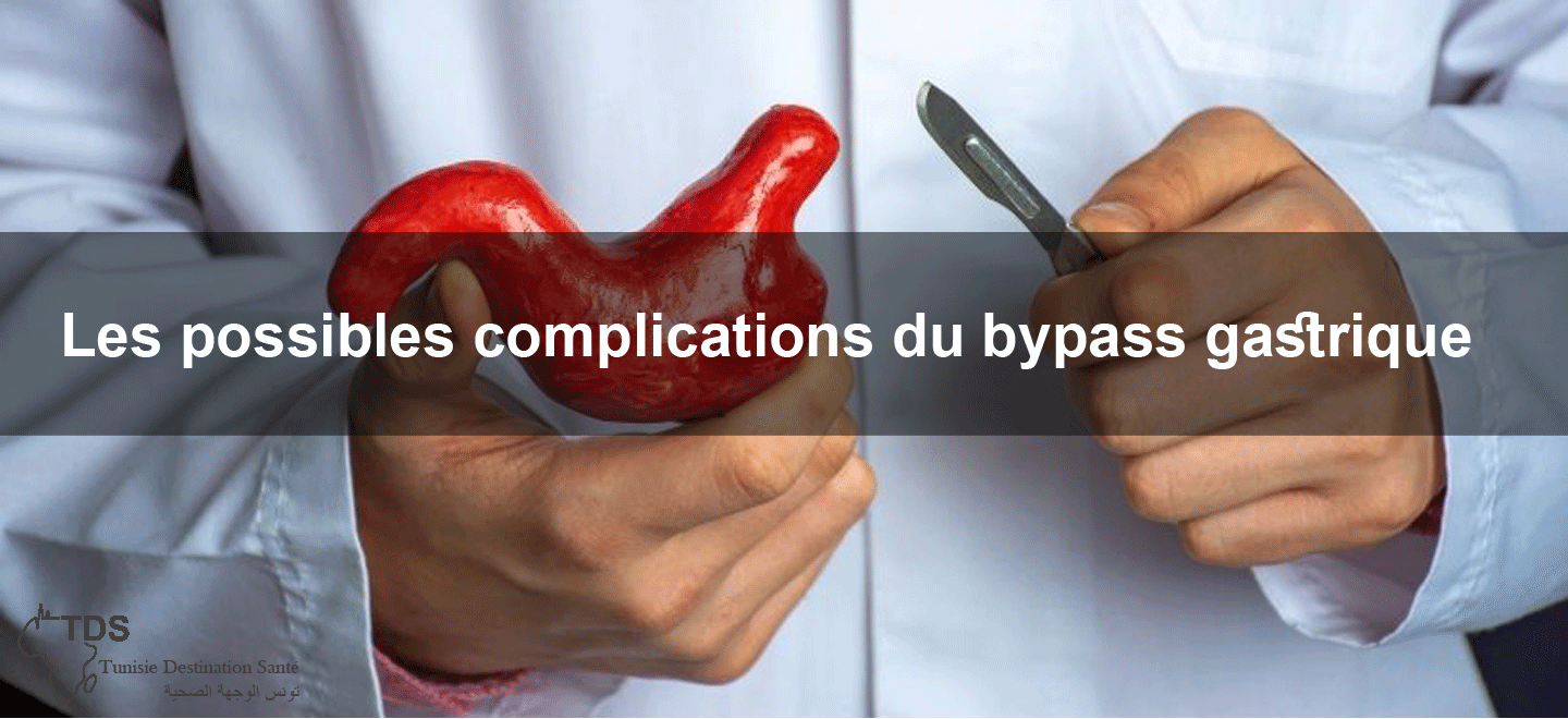 complications-bypass-gastrique