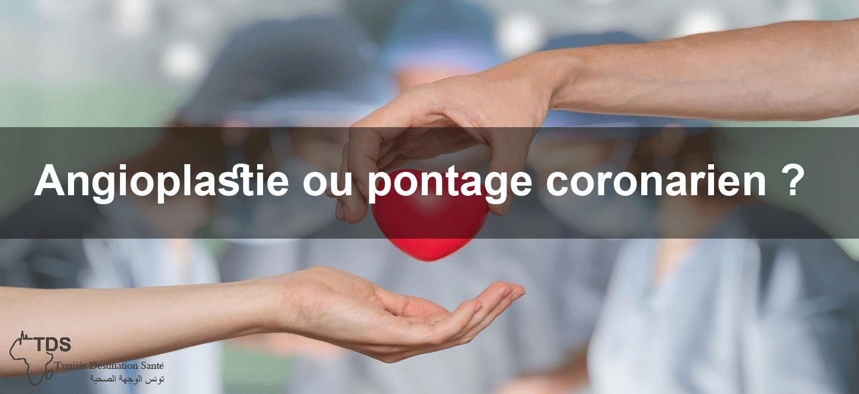 pontage-aorto-coronarien