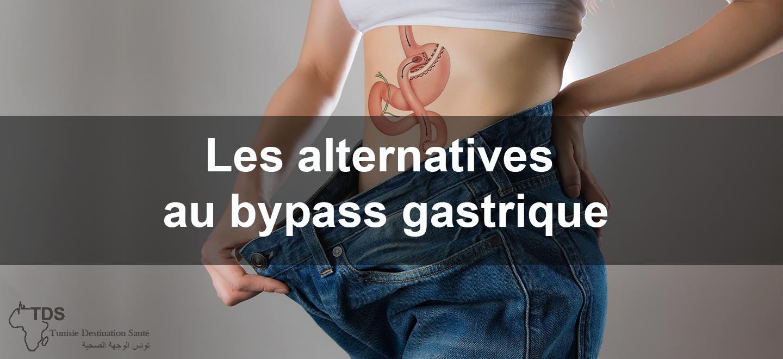 Les-alternatives-au-bypass-gastrique