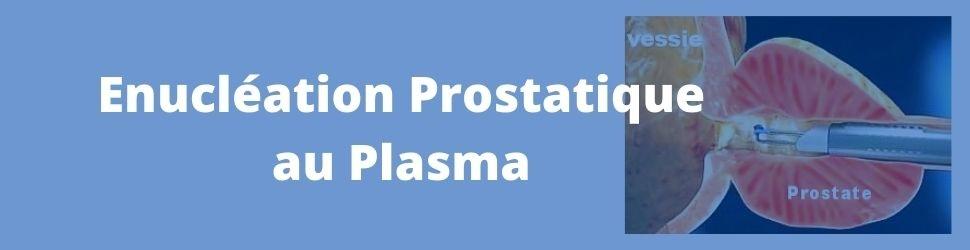 enucléation prostatique au plasma urologie