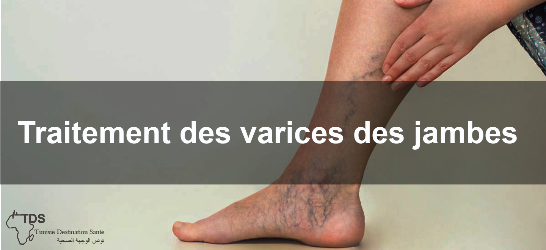 Traitement-des-varices-des-jambes