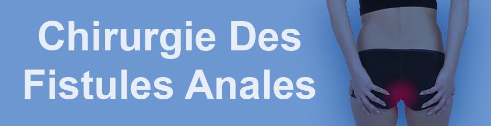 Chirurgie-des-fistules-anales-tunisie